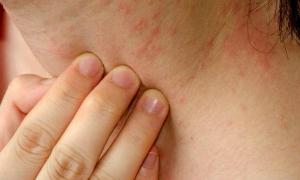 A expectativa é que o fitoterápico desenvolvido auxilie no tratamento de lesões cutâneas (Foto: divulgação/Getty Images)